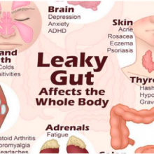 Leaky Gut Syndrome – The Colon Hydrotherapy Clinic